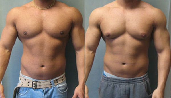 pictures of trenbolone users