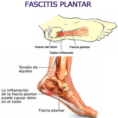 Como-se-produce-la-Fascitis-Plantar