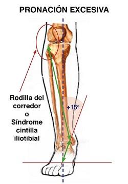 rodilla-del-corredor