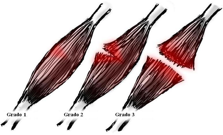 grados de desgarro muscular